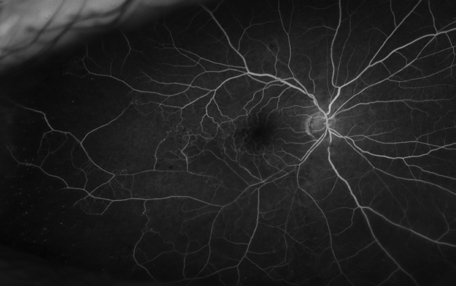 Branch Retinal Vein Occlusion Angiogram
