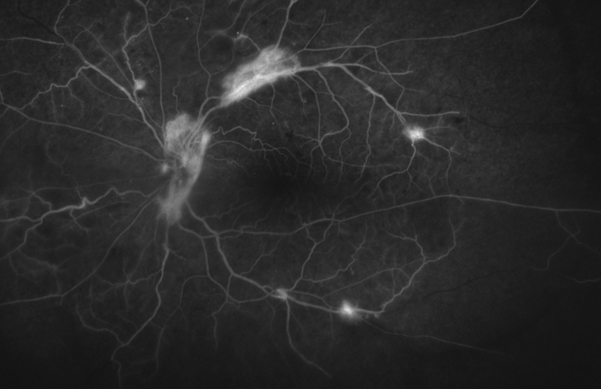Diabetic Retinopathy Angiogram