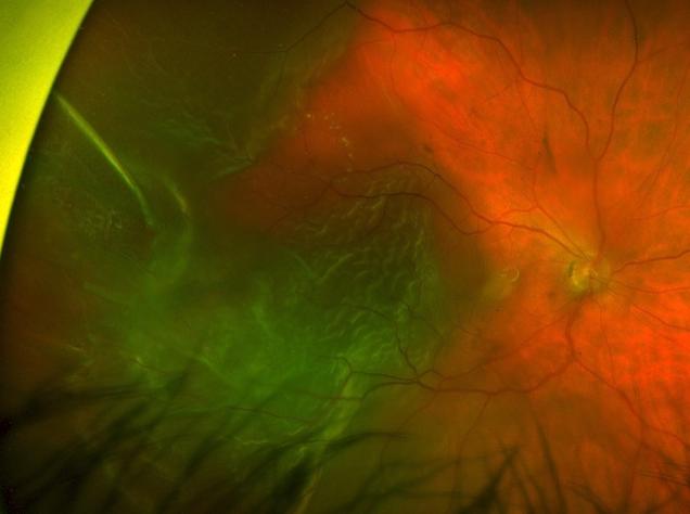 Retinal Detachment Fundus