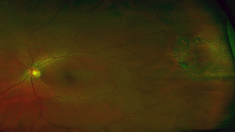 Retinal Tear Treated